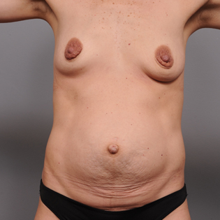 35-44 year old woman treated with Mommy Makeover before 3492855