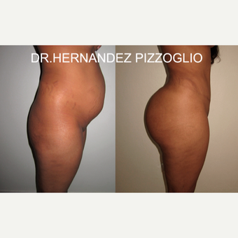 25-34 year old woman treated with Tummy Tuck before 2762852