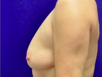 45-54 year old woman treated with Fat Transfer 2280017
