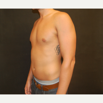 25-34 year old man treated with Male Breast Reduction after 3180929