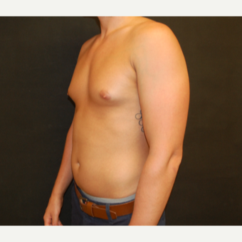 25-34 year old man treated with Male Breast Reduction before 3180929