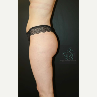 35-44 year old woman treated with Brazilian Butt Lift after 3076099