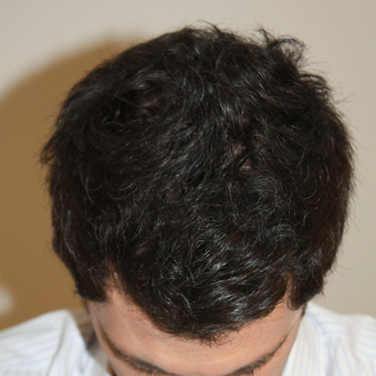 35-44 year old man treated with FUE Hair Transplant after 3616939