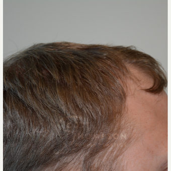 25-34 year old man treated with Hair Transplant before 3468134