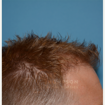 25-34 year old man treated with Hair Transplant after 3468134
