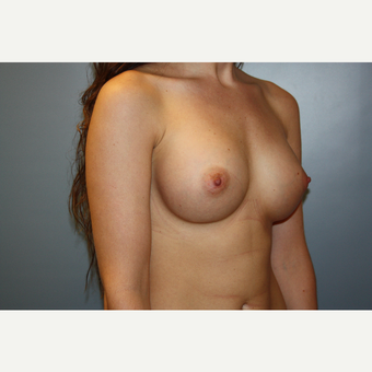 18-24 year old woman treated with Breast Augmentation after 3708749