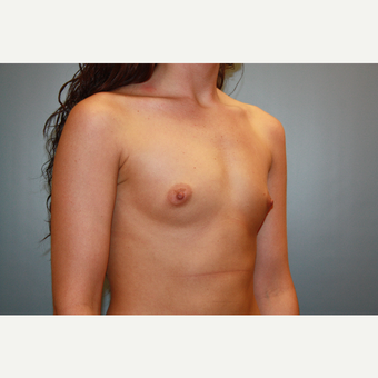18-24 year old woman treated with Breast Augmentation before 3708749