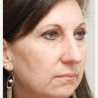 45-54 year old woman treated with Rhinoplasty before 3833628
