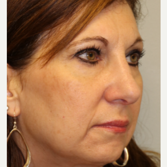 45-54 year old woman treated with Rhinoplasty after 3833628
