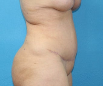 45-54 year old woman treated with Tummy Tuck after 3203795