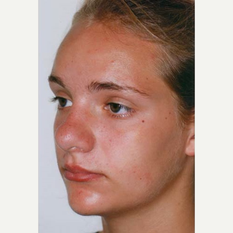 17 or under year old woman treated with Rhinoplasty before 3406171