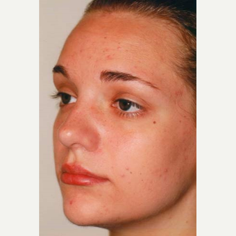 17 or under year old woman treated with Rhinoplasty after 3406171