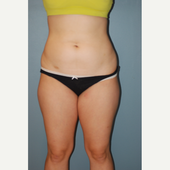 25-34 year old woman treated with Liposuction before 3623664