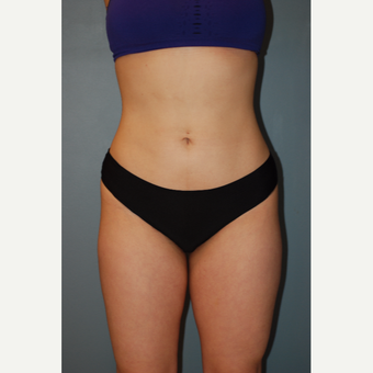 25-34 year old woman treated with Liposuction after 3623664