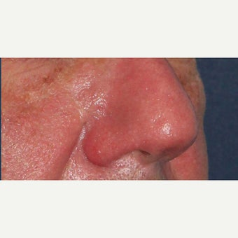 61 year old man treated with CO2 laser for rhinophyma (rosacea) of the nose 1783426