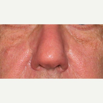 61 year old man treated with CO2 laser for rhinophyma (rosacea) of the nose after 1783426