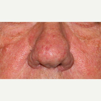 61 year old man treated with CO2 laser for rhinophyma (rosacea) of the nose before 1783426