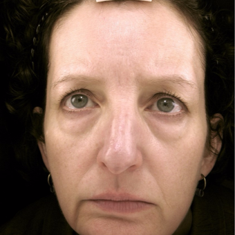 45-54 year old woman treated with Eyelid Surgery before 3489985