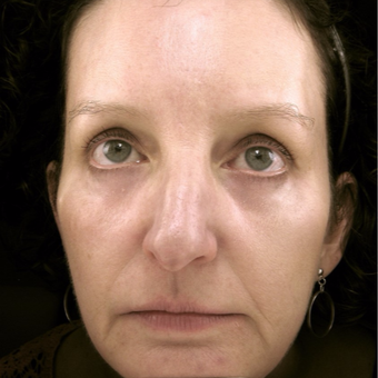 45-54 year old woman treated with Eyelid Surgery after 3489985