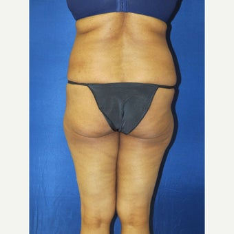 55-64 year old woman treated with Brazilian Butt Lift before 1810881
