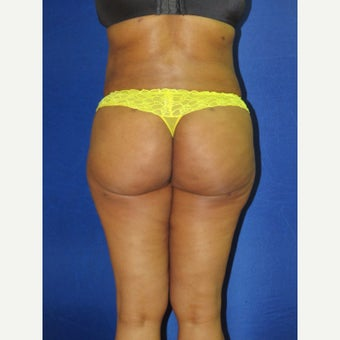 55-64 year old woman treated with Brazilian Butt Lift after 1810881