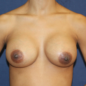 Breast Augmentation with Rapid Recovery after 3814397