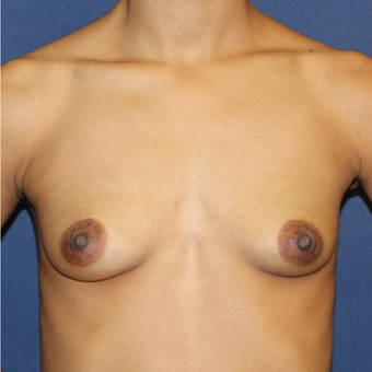 Breast Augmentation with Rapid Recovery before 3814397