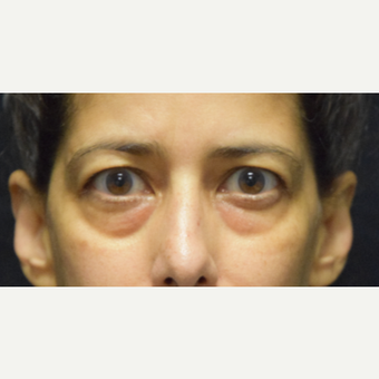 45-54 year old woman treated with Eyelid Surgery before 3424379