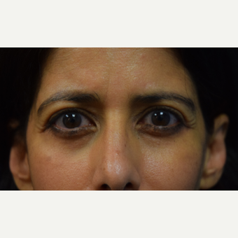 45-54 year old woman treated with Eyelid Surgery after 3424379