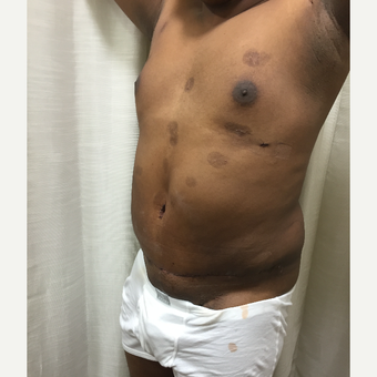 35-44 year old man treated with Male Tummy Tuck after 3316839