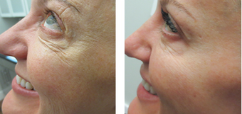 Female Ultherapy for Under the Eyes