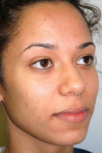 18-24 year old woman treated with Rhinoplasty before 1561436