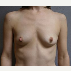 25-34 year old woman treated with Breast Implants before 3108534