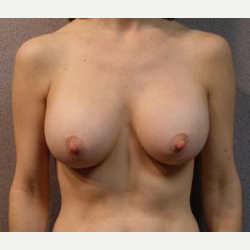 25-34 year old woman treated with Breast Implants after 3108534