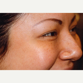 25-34 year old woman treated with Botox after 3083101