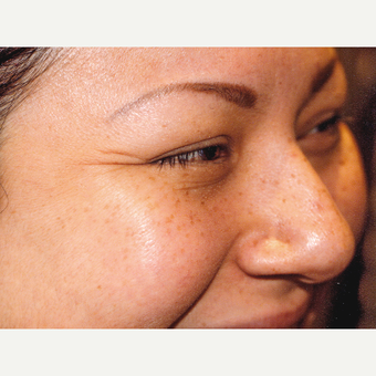 25-34 year old woman treated with Botox before 3083101