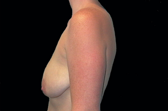 Breast augmentation 391337