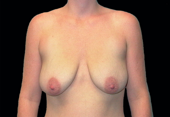 Breast augmentation before 391337