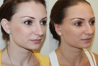 Otoplasty Surgery before 1075797
