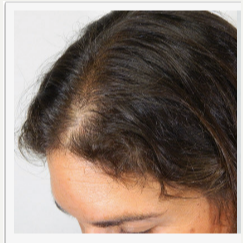35-44 year old man treated with PRP for Hair Loss before 2787201