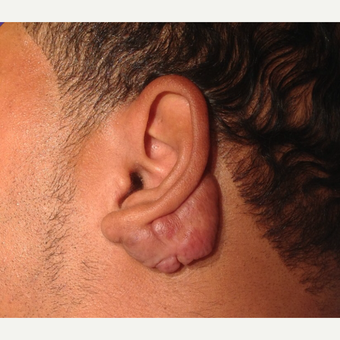 Keloid removal in a 25-34 year-old man before 3469187