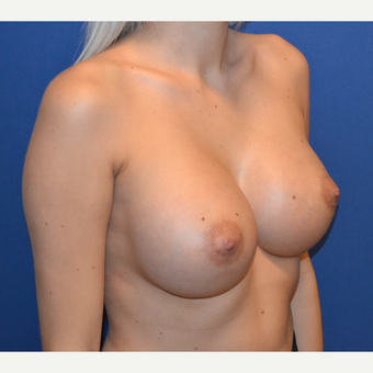 18-24 year old woman treated with Breast Implants after 3724749