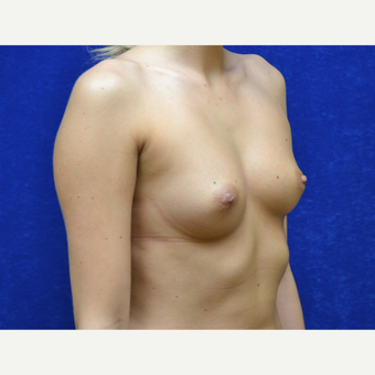 18-24 year old woman treated with Breast Implants before 3724749
