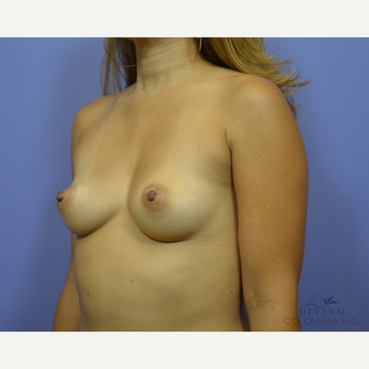 35-44 year old woman treated with Breast Augmentation before 3419048