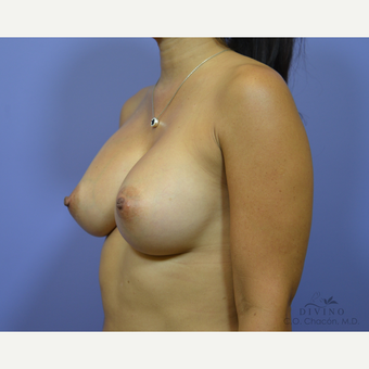 35-44 year old woman treated with Breast Augmentation after 3419048
