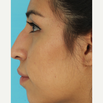 18-24 year old woman treated with Rhinoplasty before 3611888