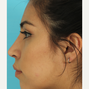 18-24 year old woman treated with Rhinoplasty after 3611888