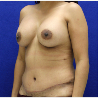 25-34 year old woman treated with Mommy Makeover after 3482474