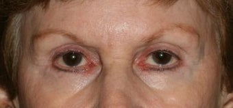 Restylane & Botox for eye rejuvenation before 1134413
