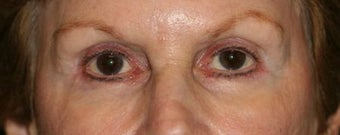 Restylane & Botox for eye rejuvenation after 1134413